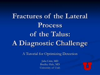 Fractures of the Lateral Process  of the Talus:                     A Diagnostic Challenge