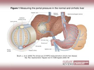 Figure 1  Measuring the portal pressure in the normal and cirrhotic liver