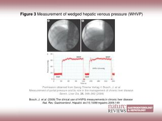 Figure 3 Measurement of wedged hepatic venous pressure (WHVP)