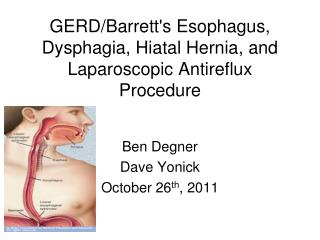GERD/Barrett's Esophagus, Dysphagia, Hiatal Hernia, and Laparoscopic Antireflux Procedure