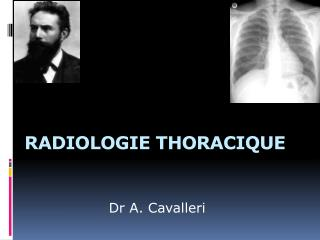 RADIOLOGIE THORACIQUE