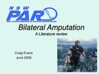 Bilateral Amputation A Literature review