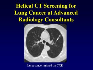 Helical CT Screening for Lung Cancer at Advanced Radiology Consultants