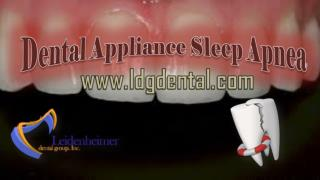 Dental Appliance Sleep Apnea