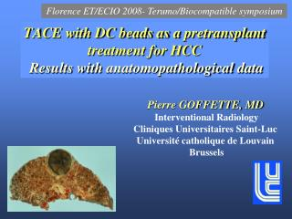 TACE with DC beads as a  pretransplant  treatment for HCC Results with  anatomopathological  data