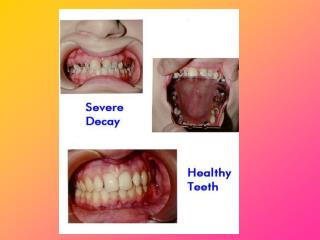 Periodontal/Gum Disease