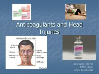 Anticoagulants and Head Injuries