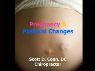 Pregnancy  Postural Changes