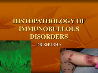 HISTOPATHOLOGY OF IMMUNOBULLOUS DISORDERS