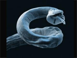 [Almost]  Everything you wanted to know about lung worms…but were afraid to ask