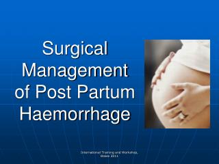 Surgical Management   of Post Partum Haemorrhage