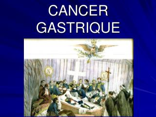 CANCER  GASTRIQUE
