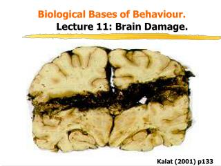 Biological Bases of Behaviour.   Lecture 11: Brain Damage.