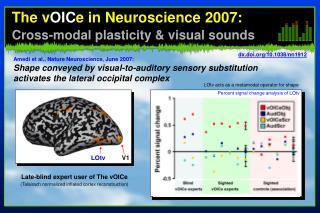 The v OIC e in Neuroscience 2007: Cross-modal plasticity & visual sounds