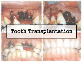 Tooth Transplantation