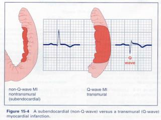 ECG Changes in Acute Myocardial Infarction