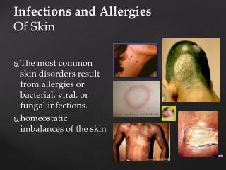 Infections and Allergies Of Skin