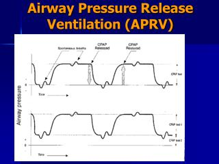 Airway Pressure Release Ventilation (APRV)