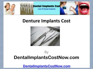 Denture Implants Cost