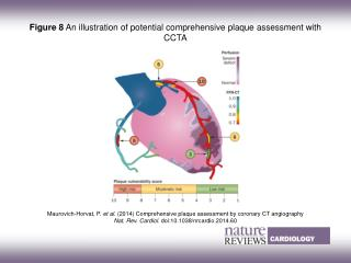 Maurovich-Horvat, P.  et al.  (2014)  Comprehensive plaque assessment by coronary CT angiography