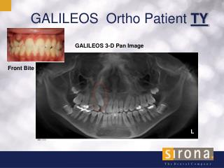 GALILEOS  Ortho Patient  TY