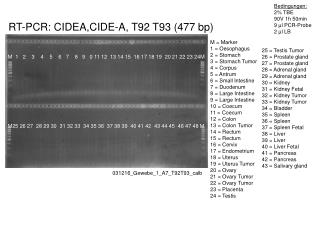 RT-PCR:  CIDEA,CIDE-A , T92 T93 (477 bp)