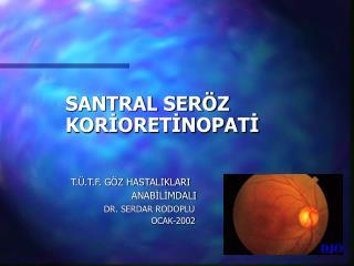 SANTRAL SERÖZ       KORİORETİNOPATİ T.Ü.T.F. GÖZ HASTALIKLARI