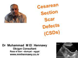 Cesarean  Section Scar  Defects (CSDs)