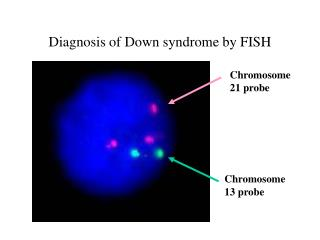 Diagnosis of Down syndrome by FISH