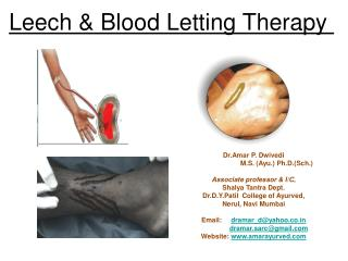 Leech & Blood Letting Therapy