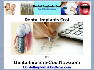[Dental Implants Cost]