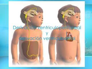 Derivación ventriculoperitoneal y derivación ventriculoatrial