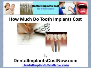 How Much Do Tooth Implants Cost