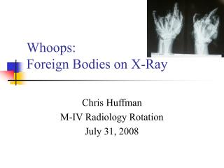 Whoops: Foreign Bodies on X-Ray