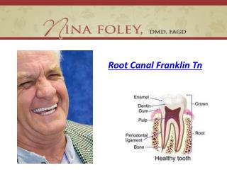 Root Canal Franklin Tn