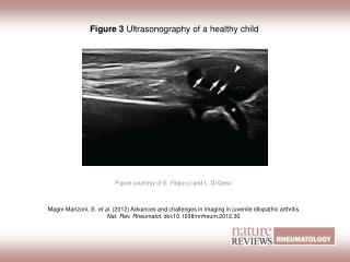 Figure 3 Ultrasonography of a healthy child