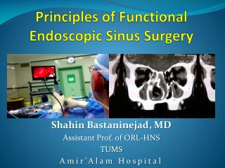 Principles of Functional Endoscopic Sinus Surgery