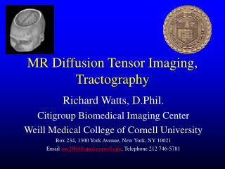 MR Diffusion Tensor Imaging, Tractography