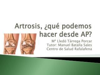 Artrosis, ¿qué podemos hacer desde AP?