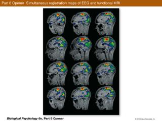Part 6 Opener  Simultaneous registration maps of EEG and functional MRI