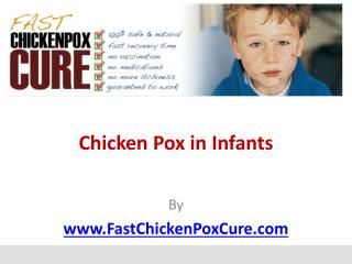 Chicken Pox in Infants