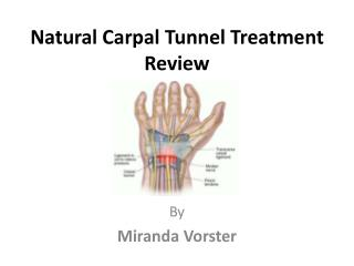 Natural Carpal Tunnel Treatment Review