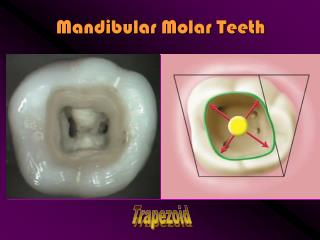 Mandibular Molar Teeth