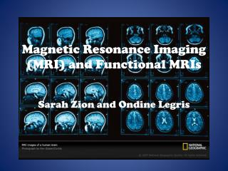 Magnetic Resonance Imaging (MRI) and Functional MRIs