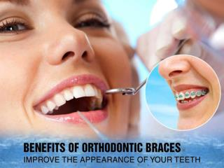 Brace your teeth by the expert Orthodontist in San Diego
