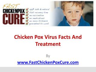 Chicken Pox Virus Facts And Treatment