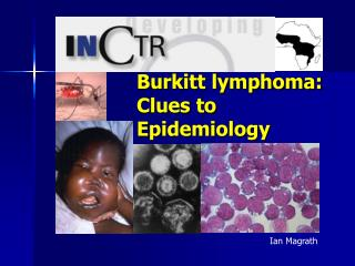 Burkitt lymphoma:  Clues to Epidemiology