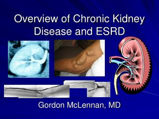 Overview of Chronic Kidney Disease and ESRD