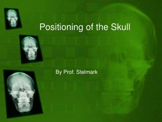 Positioning of the Skull