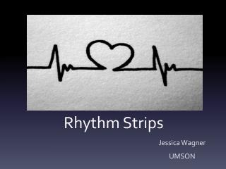 Rhythm Strips